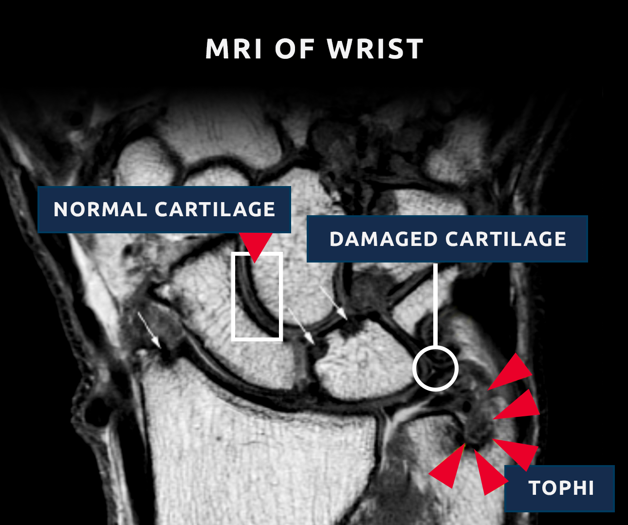 Cartilage Loss MRI