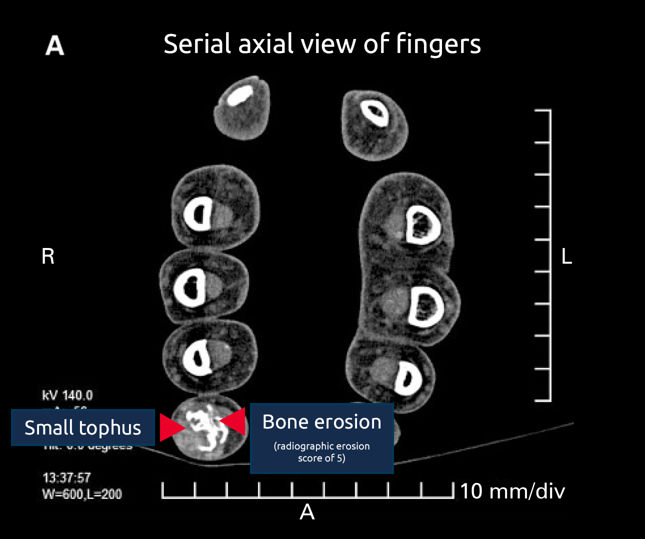 Serial axial view of fingers Small tophus Bone erosion (radiographic erosion score of 5)