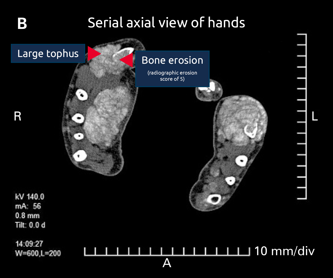 Serial axial view of hands Large tophus Bone erosion (radiographic erosion score of 5)